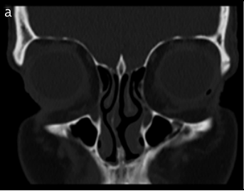 Is an increase in the depth of the olfactory fossa caused by excessive vertical facial growth? A radiological study